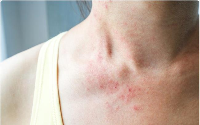 3 biểu hiện bất thường trên da tuyệt đối không được bỏ qua: Đốm và nốt ruồi tưởng như rất bình thường lại có thể là mầm mống của u ác tính