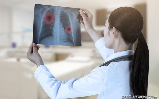 """Bác sĩ trưởng khoa ung bướu tiết lộ những người """"miễn dịch ung thư"""" thường có 7 đặc điểm này"""