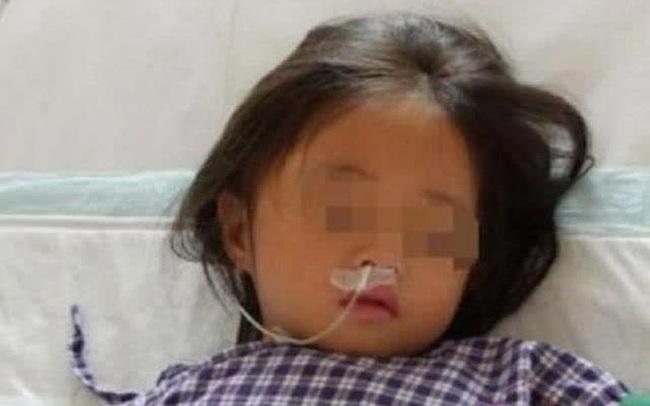 Bé gái 7 tuổi nhập viện trong tình trạng suy đa tạng chỉ vì bố mẹ phạm sai lầm khi chế 1 món nhiều người yêu thích
