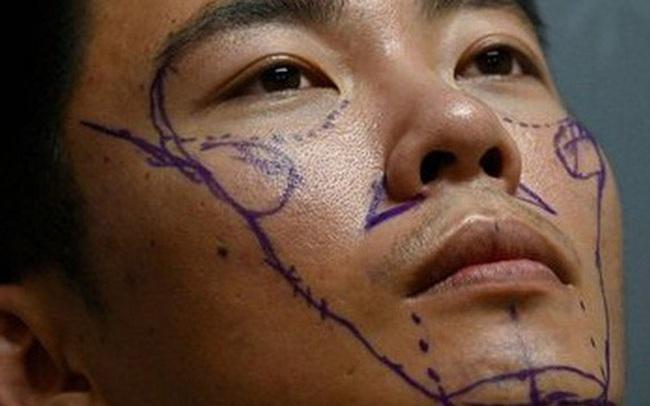 Lột trần khuôn mặt đẹp rạng ngời đúng chuẩn của nam giới Trung Quốc: Giật mình với sự thật đằng sau