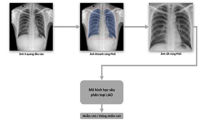 VinBrain và FIT phát hành sách trắng về ứng dụng trí tuệ nhân tạo cho chẩn đoán và tầm soát bệnh lao