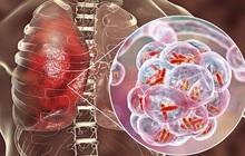 """Không chỉ Covid-19, thời gian này còn là """"đỉnh"""" của 4 bệnh truyền nhiễm cần phòng tránh"""