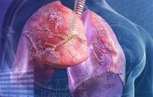 Nếu cơ thể có 2 chỗ lồi và 3 chỗ đen sạm: Bệnh phổi đang điểm danh bạn, hãy đi khám