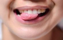 """Lưỡi không chỉ giúp bạn nói mà ngay cả các loại bệnh nguy hiểm nó cũng """"lên tiếng"""" được thông qua 5 dấu hiệu"""