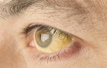 2 dấu hiệu bất thường ở mắt sẽ giúp bạn phán đoán nguy cơ ung thư từ giai đoạn đầu