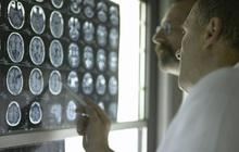 """Tiến bộ vượt bậc: Các chuyên gia Mỹ phát minh ra """"keo dán não"""", hứa hẹn bước tiến lớn trong giới y học"""