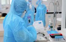 Chiều 21/6, Việt Nam có thêm 133 ca mắc COVID-19 mới, riêng TP.HCM 70 ca