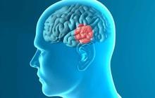 """Xuất hiện 3 triệu chứng sớm này khi thức dậy vào buổi sáng, hãy gặp bác sĩ càng sớm càng tốt để tự cứu mình khỏi """"cửa tử"""" nhồi máu não"""