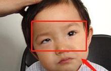 """Bé trai 5 tuổi mắt thâm đen, con ngươi 1 bên mắt """"biến mất"""", bị lác nghiêm trọng bởi thói quen """"dễ dãi"""" của nhiều bố mẹ trẻ"""