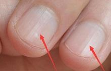 Người sở hữu lá gan khỏe mạnh sẽ có 5 biểu hiện trên bàn tay, nếu bạn có đủ cả thì xin chúc mừng