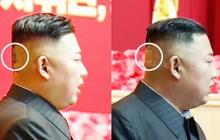 Băng dán đầu bí ẩn làm dấy lên những đồn đoán về sức khỏe ông Kim Jong Un