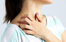 3 dấu hiệu trên làn da cảnh báo đường huyết cao quá mức, cần làm ngay 2 việc để tránh nhiều biến chứng nguy hiểm