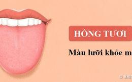 """13 điều lưỡi đang cố thể hiện với bạn về tình trạng sức khỏe """"báo động"""" của cơ thể"""