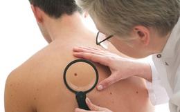 4 dấu hiệu cảnh báo ung thư da bạn tuyệt đối không được bỏ qua