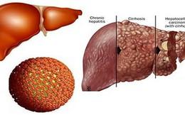 Những điều cần biết về bệnh viêm gan B