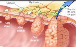 """Chuyên gia Malaysia: 3 cách phát hiện sớm, loại bỏ ung thư đại trực tràng từ """"trứng nước"""""""