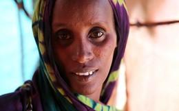 20 triệu người sắp chết đói, thế giới chìm trong cuộc khủng hoảng nhân đạo tồi tệ nhất lịch sử Liên Hợp Quốc