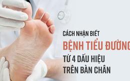 """Khi có 4 dấu hiệu này ở bàn chân, có thể bạn đã rơi vào """"bẫy"""" bệnh tiểu đường"""