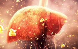 """[Đọc nhanh] Gan nhiễm """"bẩn"""" là gốc của bệnh tật, giải độc thế nào hiệu quả nhất?"""