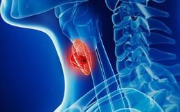 [Đọc nhanh] Căn bệnh ung thư tiến triển nhanh, ăn uống khó: Dấu hiệu cần biết để điều trị