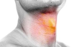 7 triệu chứng cảnh báo ung thư đầu cổ