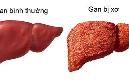 5 dấu hiệu của bệnh xơ gan ai đã có thì nên khám ngay kẻo muộn