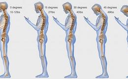 Nhìn vào bức tranh này sẽ thấy: Dùng điện thoại nhiều sẽ làm hỏng xương sống như thế nào?