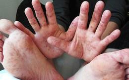 Chuyên gia dịch tễ: Đa số trẻ tử vong vì tay chân miệng do tự điều trị tại nhà