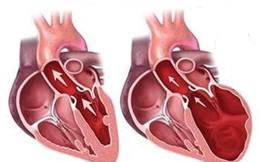 Nhận biết và phòng ngừa bệnh thấp tim