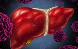 Tỷ lệ mắc ung thư gan ở Việt Nam cao thứ 5 thế giới và đây là cách để phòng chống
