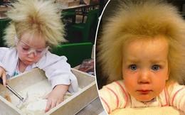 """Kỳ lạ bé gái 8 tuổi thừa hưởng mái tóc """"dựng đứng"""" của nhà bác học thiên tài Albert Einstein"""