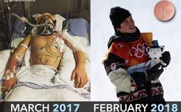Suýt chết vì tai nạn, vận động viên này đã hồi phục thần kỳ để giành huy chương Olympic chỉ sau 1 năm