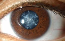 4 căn bệnh ở mắt nếu không chữa trị sớm có thể dẫn tới nguy cơ mù lòa