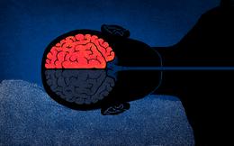 Bạn có nguy cơ bị đột quỵ cao hay thấp: Hãy bỏ ra 10 giây để làm ngay trắc nghiệm này