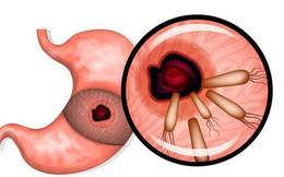 """Bệnh dạ dày làm giảm chất lượng sống và tuổi thọ: Hãy phòng bệnh với bí quyết 7 'KHÔNG"""""""