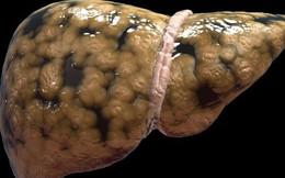 Dấu hiệu cảnh báo gan nhiễm mỡ: Phát hiện sớm sẽ tránh được bệnh viêm gan và xơ gan
