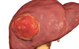 Bác sĩ Mỹ chỉ ra 8 đối tượng có nguy cơ cao bị ung thư gan: Nhiều người bị mà không biết