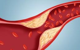 """""""Công thức vàng' làm sạch mạch máu, giảm mỡ máu: Bài thuốc nên có trong mọi gia đình"""