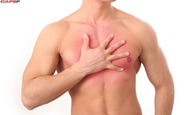 4 triệu chứng ung thư vú không ngờ ở nam giới, căn bệnh tưởng chỉ gặp phải ở các chị em