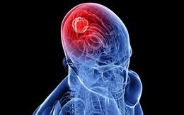 7 dấu hiệu cảnh báo ung thư não đang hình thành, nhiều người gặp nhưng rất chủ quan