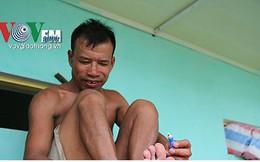 Ảnh: Sau ngập lụt dài ngày, dân Chương Mỹ đối mặt bệnh lở loét da