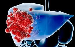 Số người tử vong vì ung thư gan tăng 43% trong 16 năm: Cơ hội sống sót vẫn rất cao nếu nhận biết các dấu hiệu sớm