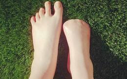 """Cô gái trẻ """"bay"""" mất 5 ngón chân sau khi đi spa cá rỉa"""