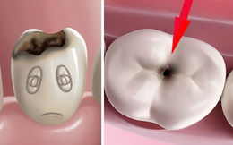 Chuyện gì sẽ xảy ra nếu bạn có một chiếc răng sâu và không chịu chữa trị ngay?