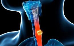 [Cẩm nang] Ung thư thực quản chỉ bắt đầu bằng dấu hiệu khó nuốt, cần cảnh giác khám sớm