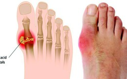 """Lời khuyên """"5 nên, 4 tránh"""" ai cũng cần dùng để phòng chữa căn bệnh gây đau thấu xương"""