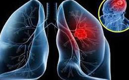 20.000 người chết mỗi năm vì bệnh này: Chuyên gia nhắc nam giới từ 50 cần kiểm tra ngay