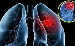 Tưởng viêm phổi lại hoá ung thư giai đoạn 4, người phụ nữ cảnh báo về 1 dấu hiệu cần chú ý