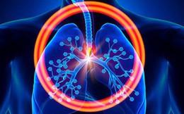 Hơn 20.000 người Việt tử vong do ung thư phổi mỗi năm: Phát hiện bệnh sớm để sống lâu hơn