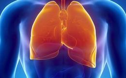 Bác sĩ bệnh viện Phổi Trung ương: Những loại thực phẩm làm giảm nhiễm độc phổi